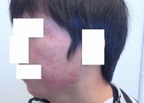 肌のクリニック ニキビ治療 症例