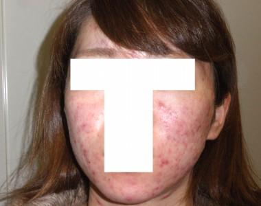 アキュテイン治療4-2-1 1ヶ月後