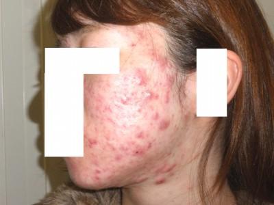 アキュテイン治療4-2-2 1ヶ月後
