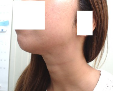 acne-case-report-1-4months