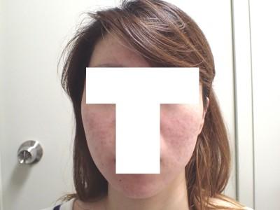 アキュテイン治療5ヶ月後2