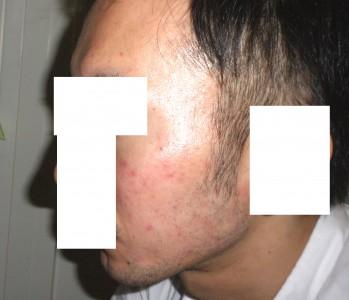 アキュテイン治療3-2-1 1ヶ月後