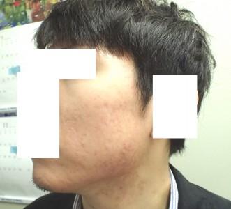 accutane-acne2-10