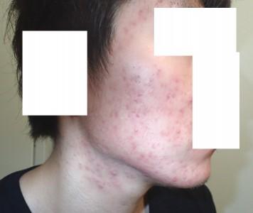 accutane-acne2-3