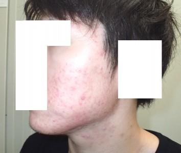 accutane-acne2-4