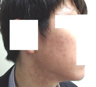 accutane-acne2-8