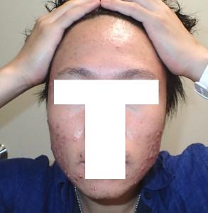 アキュテイン治療症例6-1 1ヶ月後