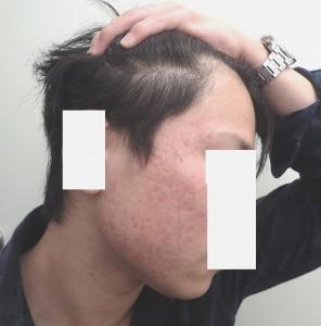 アキュテイン治療症例6-2 5ヶ月後