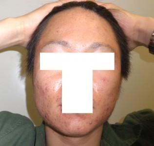 アキュテイン治療症例6-1