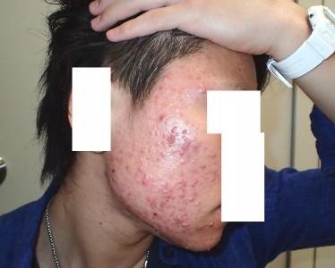 アキュテイン治療症例6-2 1ヶ月後