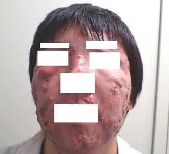 アキュテイン治療6-1-1初診時a