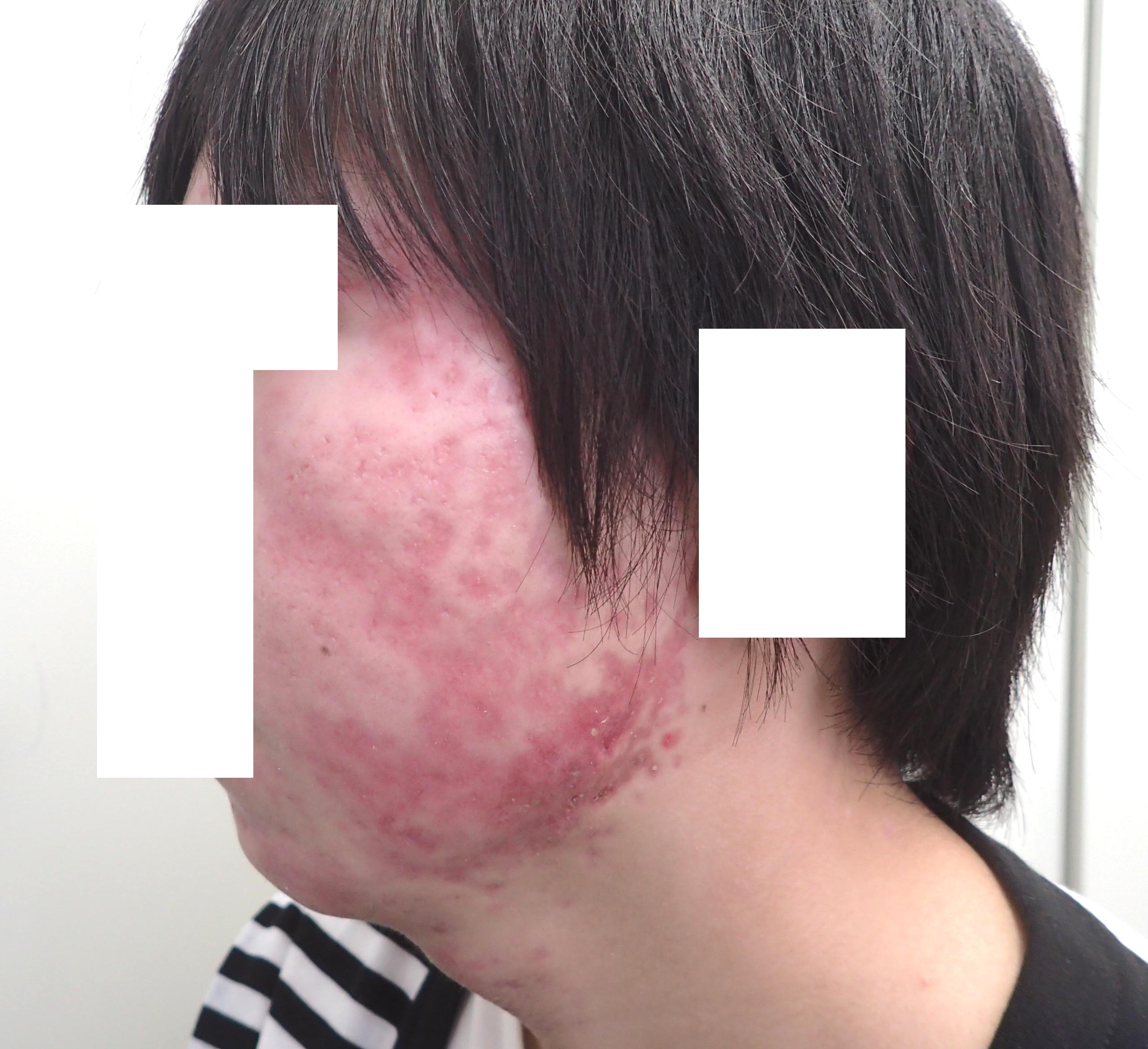 アキュテイン治療6-4-1 3ヶ月後