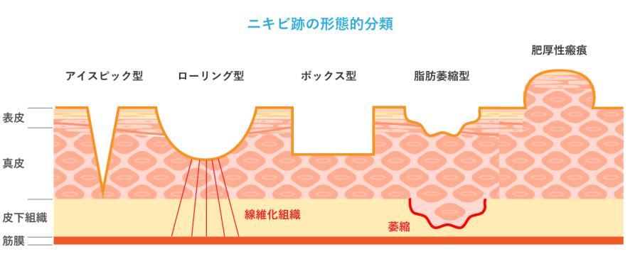ニキビ跡の形態的分類