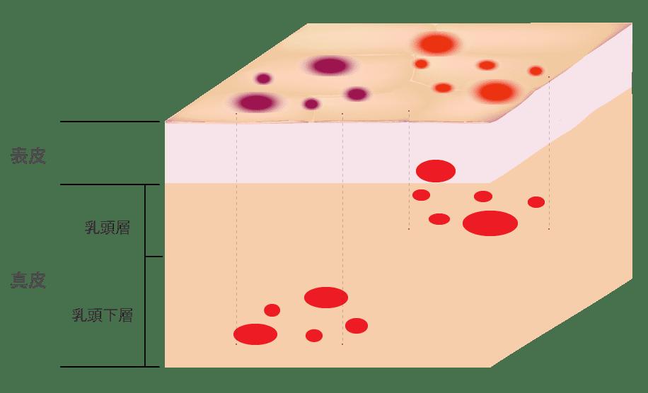 ニキビ跡の赤み