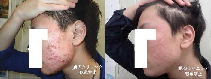 顔全体の炎症ニキビ