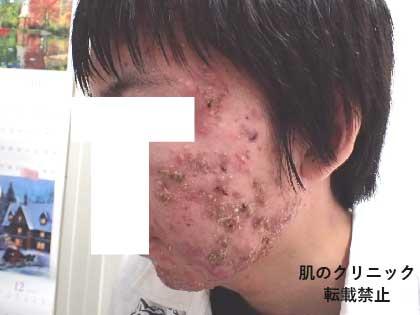 重症ニキビ治療前6