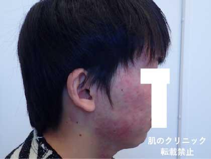 重症ニキビ治療後6