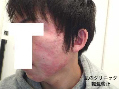 重症ニキビ治療後5