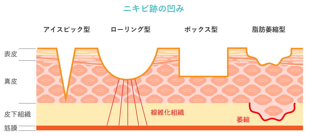 ニキビ跡の凹み