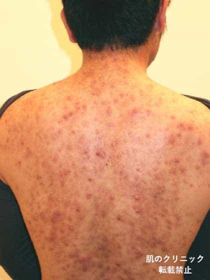 接種 ひどい 腫れ 予防 インフルエンザ