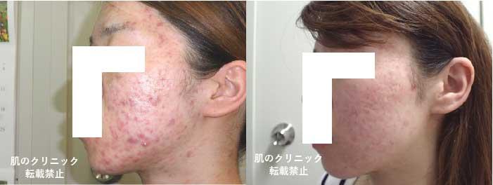 顔の膿疱性ニキビ