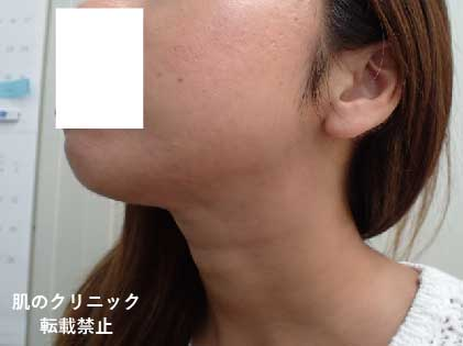 顎ニキビ治療後