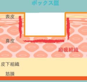 ボックス型ニキビ跡