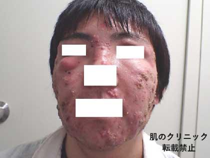 重症ニキビ治療前5