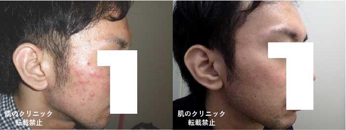 顔全体の炎症性ニキビ1