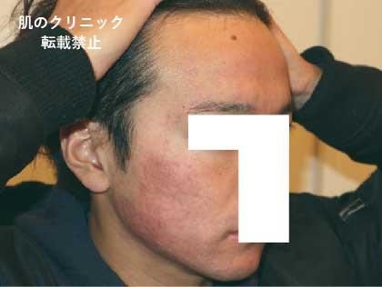 重症ニキビ治療後1