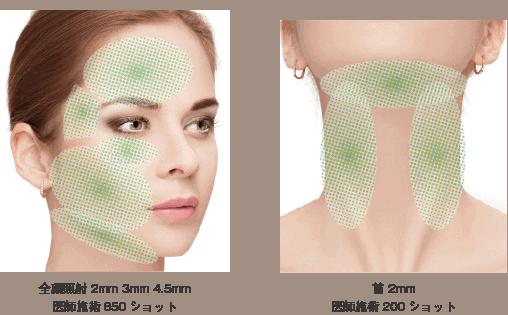 ウルトラフォーマー顔の施術範囲