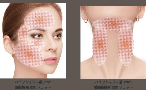 ハイフシャワー顔の施術範囲