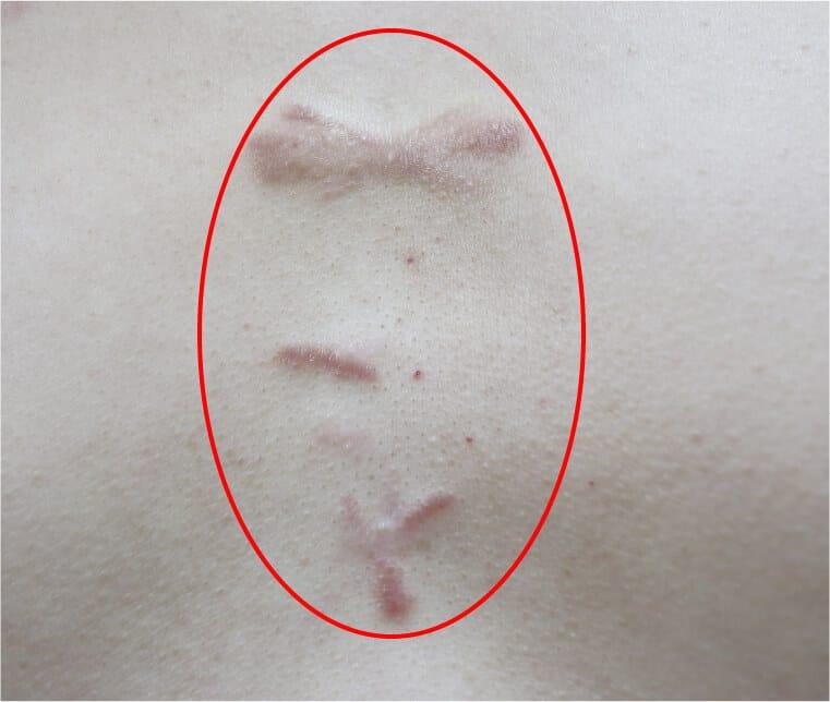 胸部の肥厚性瘢痕