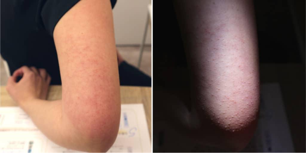 治療前の毛孔性苔癬
