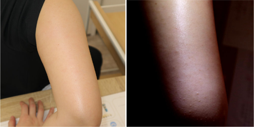 治療後の毛孔性苔癬