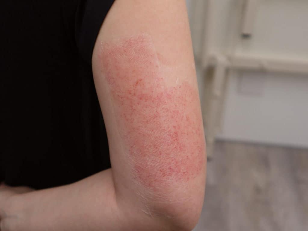 ダーマペン治療直後の毛孔性苔癬