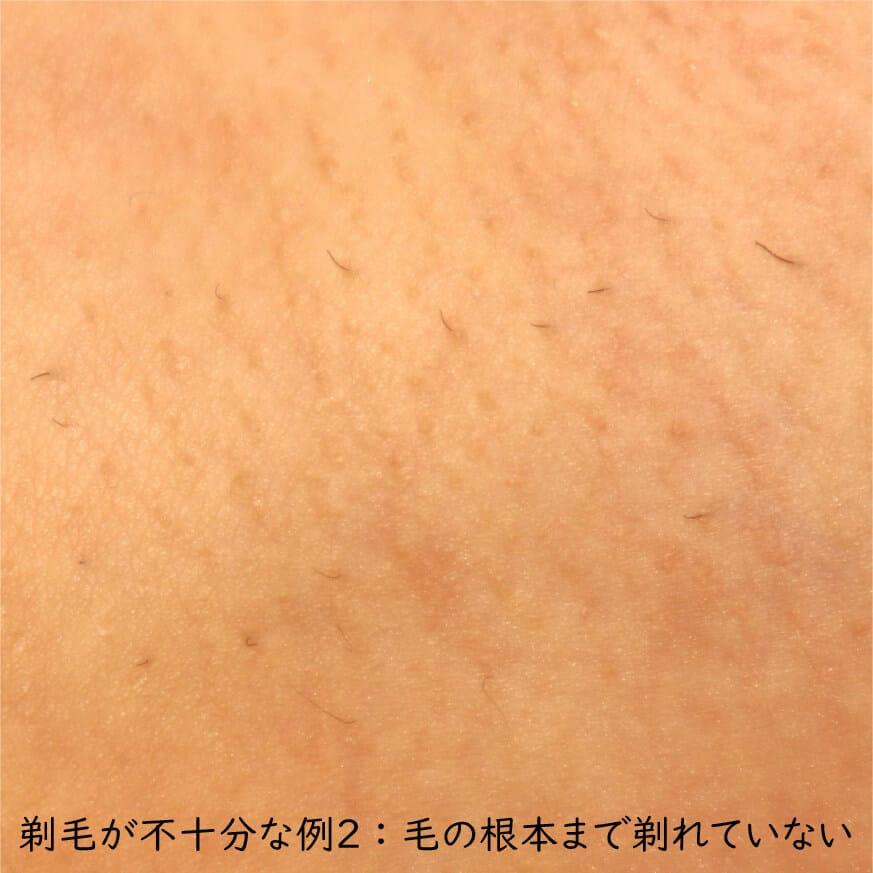 不十分な剃毛例2
